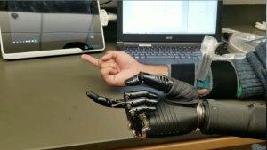 military prosthetics